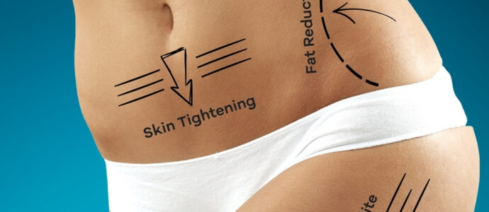 Fat Melting - Fat Reduction Body Lipo Lincoln